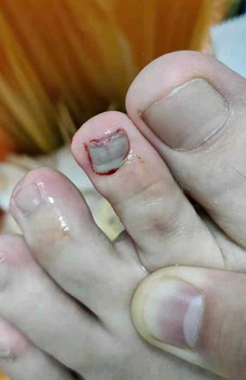 郑州市民洪水中砸伤脚趾 99年超